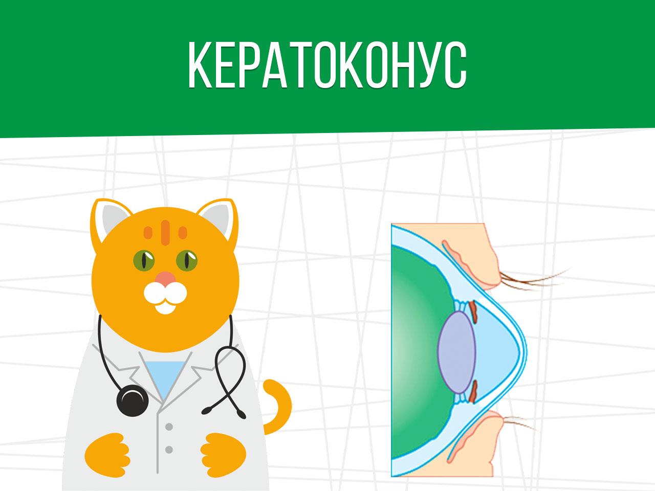 Кератоконус: категория годности призывника