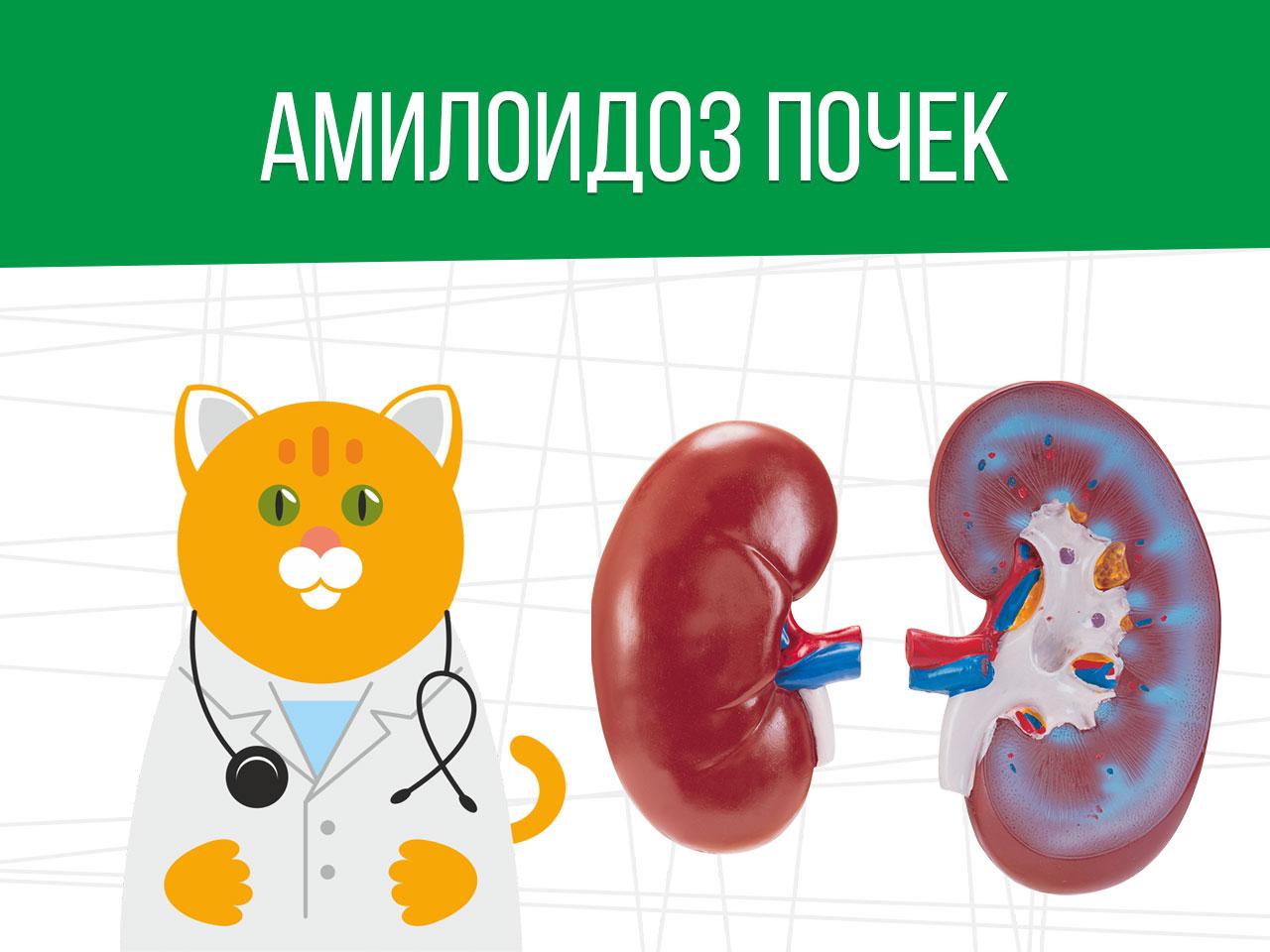 Амилоидоз почек: получение отсрочки от армии