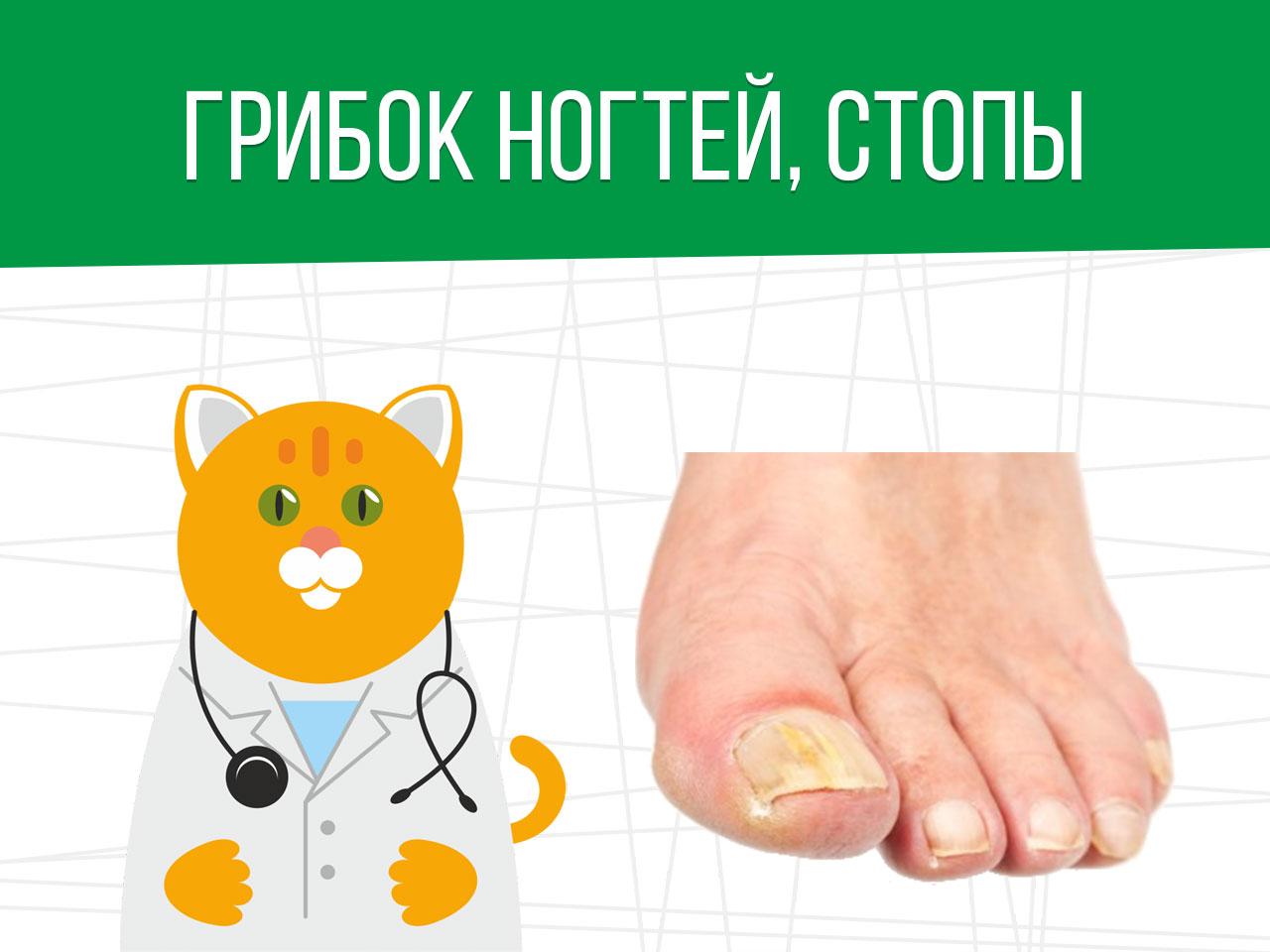Грибок ногтей и ступни: категория годности призывника